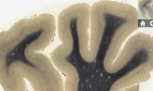 ஐபேட் அப்ளிகேசனாக வந்திருக்கும் ஐன்ஸ்டீன் மூளை